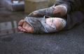 Year-A-B-C-Christmas-New-Years-Day-Bandaged-Feet